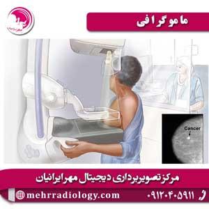 ماموگرافی (2)