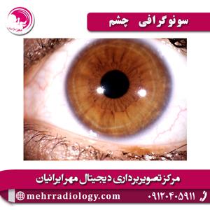 سونوگرافی چشم