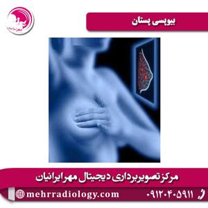 بیوپسی پستان یا نمونه برداری