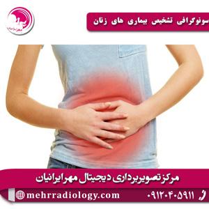 سونوگرافی-تشخیص-بیماری-های-زنان
