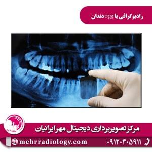 رادیوگرافی یا opg دندان