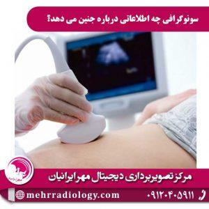 سونوگرافی چه اطلاعاتی در مورد جنین می دهد؟