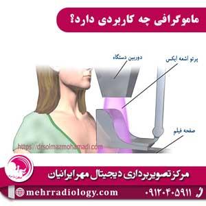 ماموگرافی چه کاربردی دارد؟
