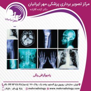 رادیوگرافی رنگی